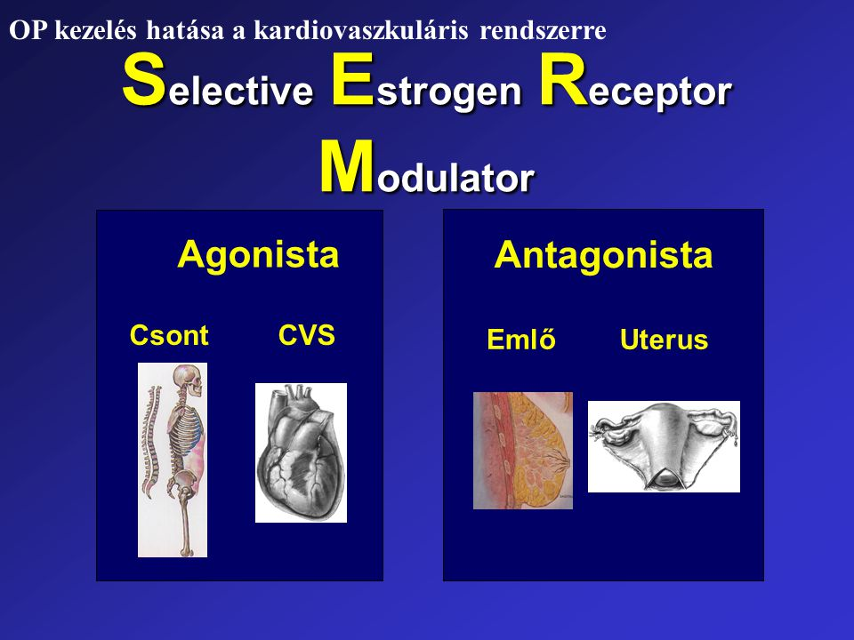Selective Estrogen Receptor Modulator