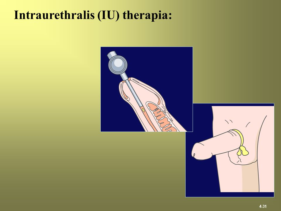 Intraurethralis (IU) therapia: