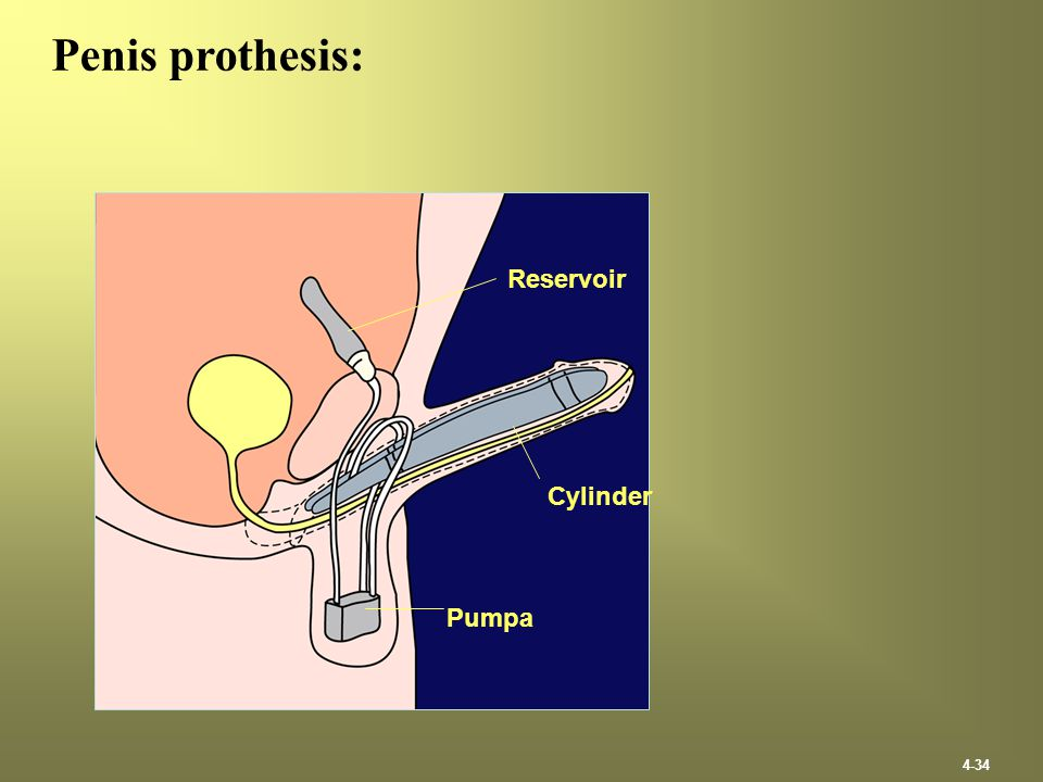 Penis prothesis: Reservoir Cylinder Pumpa