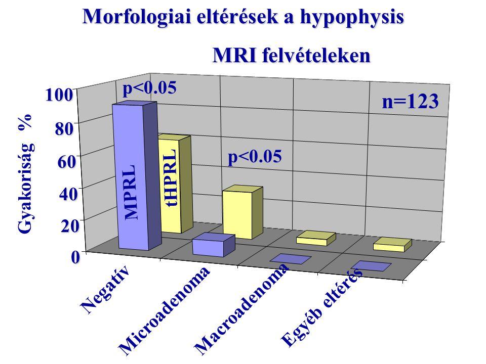 Morfologiai eltérések a hypophysis