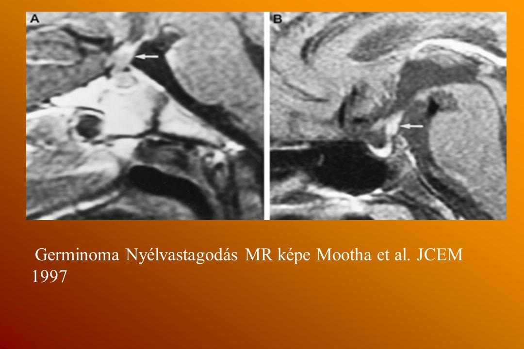 Germinoma Nyélvastagodás MR képe Mootha et al. JCEM 1997