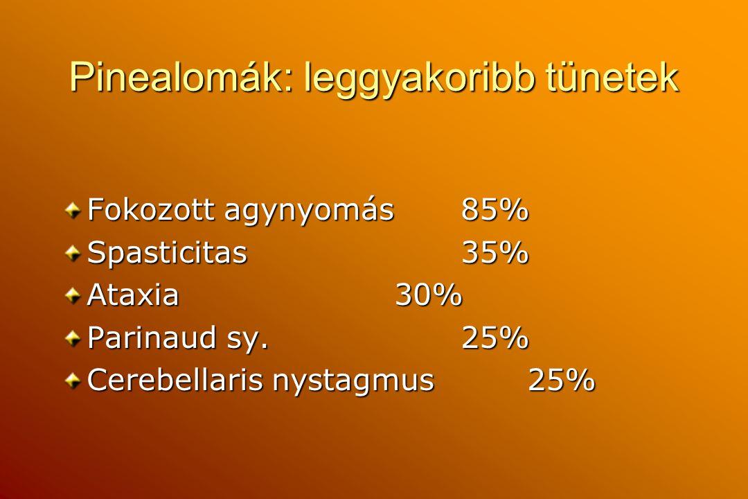 Pinealomák: leggyakoribb tünetek