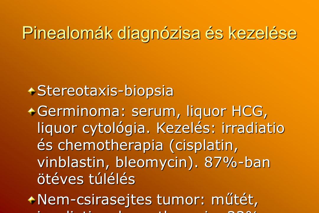Pinealomák diagnózisa és kezelése