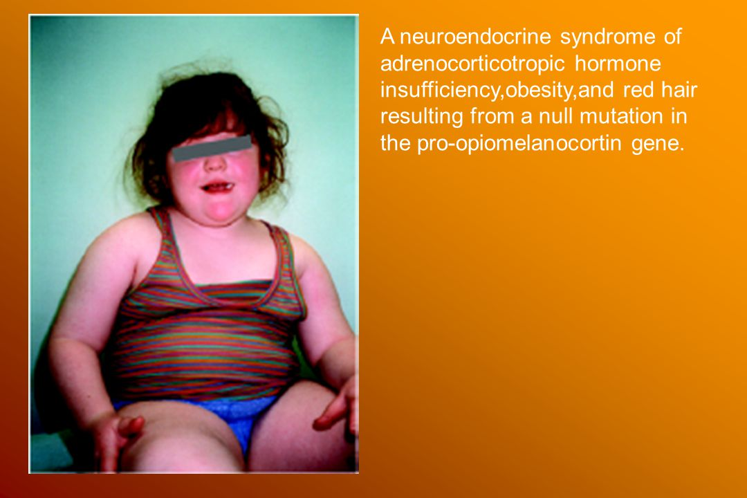 A neuroendocrine syndrome of adrenocorticotropic hormone insufficiency,obesity,and red hair resulting from a null mutation in the pro-opiomelanocortin gene.