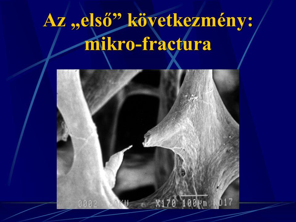 """Az """"első következmény: mikro-fractura"""