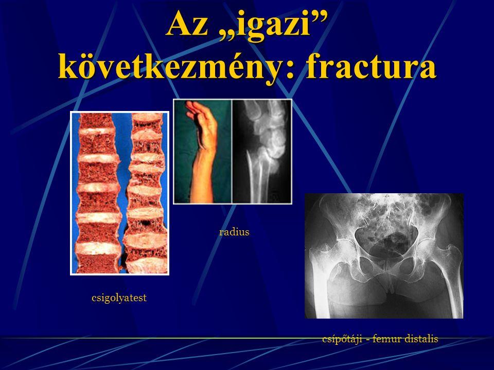 """Az """"igazi következmény: fractura"""