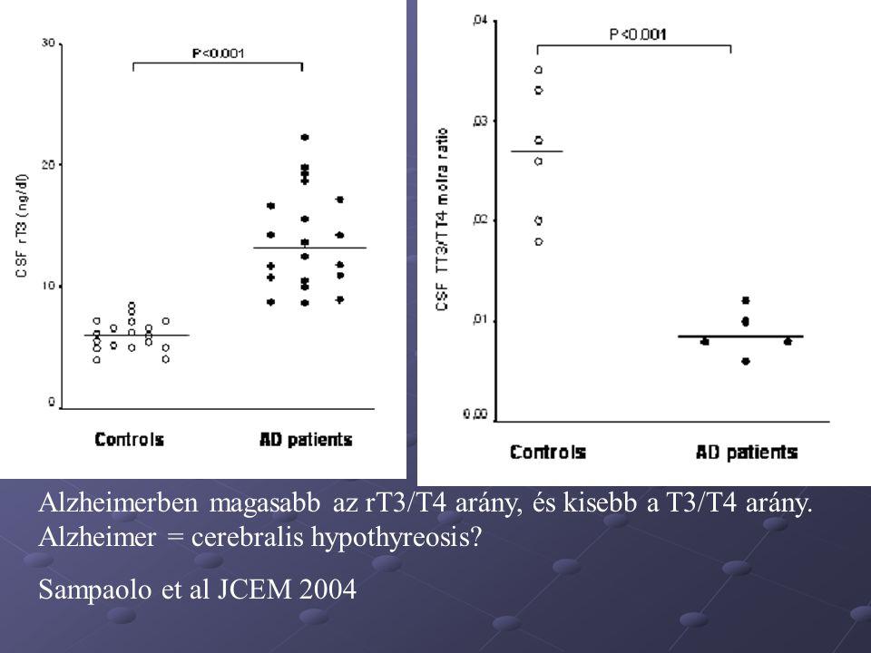 Alzheimerben magasabb az rT3/T4 arány, és kisebb a T3/T4 arány