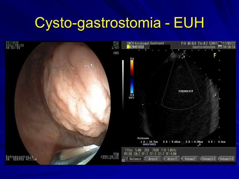 Cysto-gastrostomia - EUH