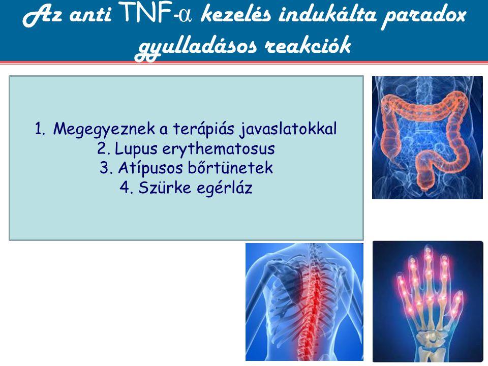 Az anti TNF-α kezelés indukálta paradox gyulladásos reakciók