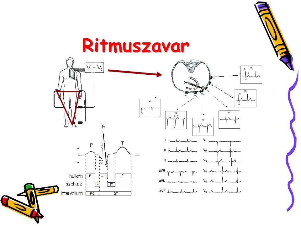 Ritmuszavar 6. ábra A normális EKG-görbe 7. ábra