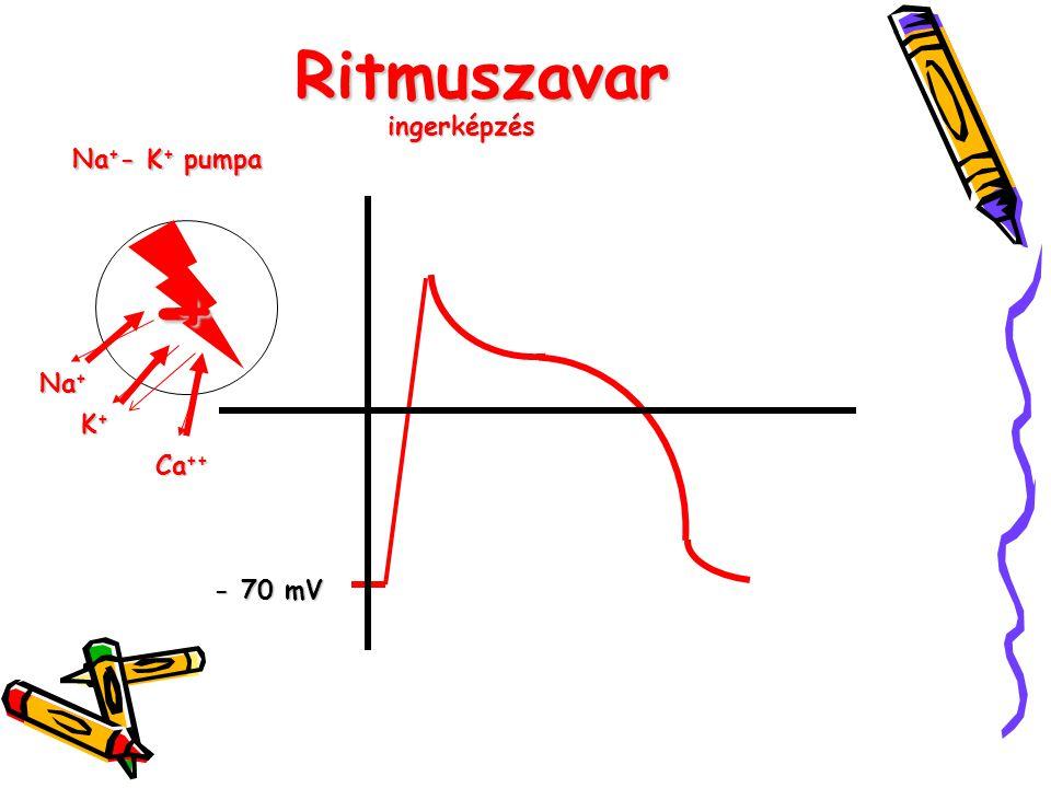 Ritmuszavar ingerképzés Na+- K+ pumpa - + Na+ K+ Ca++ - 70 mV