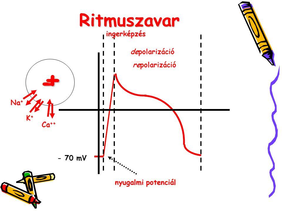 + - Ritmuszavar ingerképzés depolarizáció repolarizáció Na+ K+ Ca++