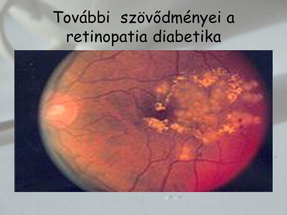 További szövődményei a retinopatia diabetika
