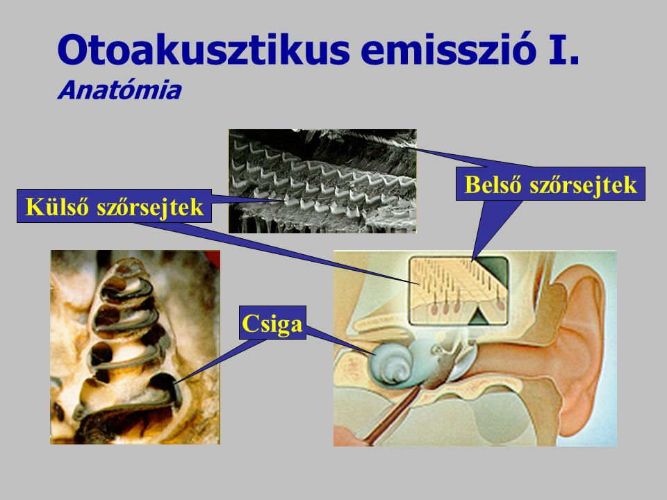 Otoakusztikus emisszió I. Anatómia
