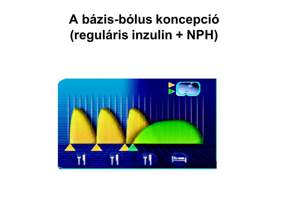 A bázis-bólus koncepció (reguláris inzulin + NPH)