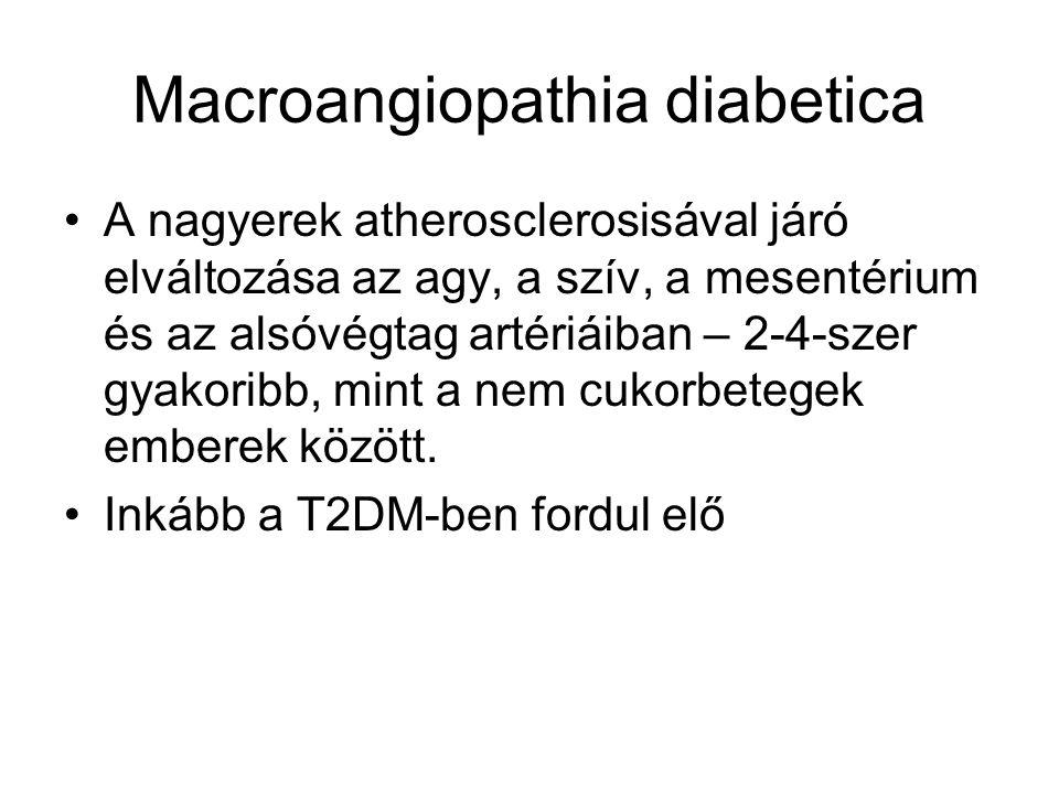 Macroangiopathia diabetica