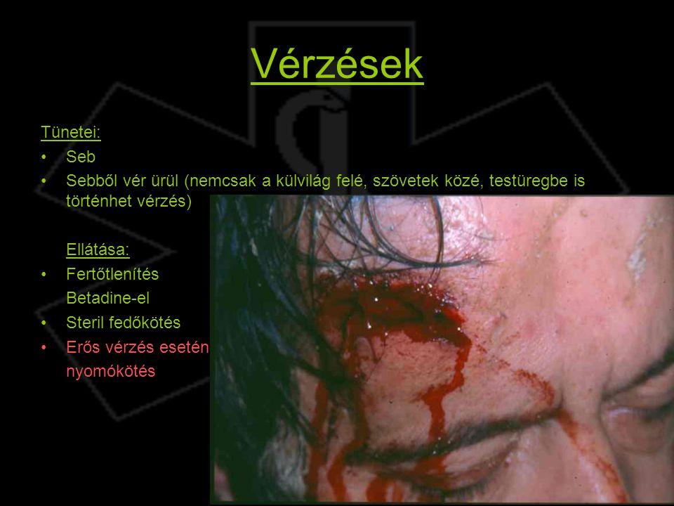 Vérzések Tünetei: Seb. Sebből vér ürül (nemcsak a külvilág felé, szövetek közé, testüregbe is történhet vérzés)