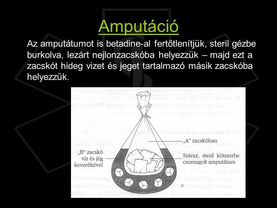 Amputáció
