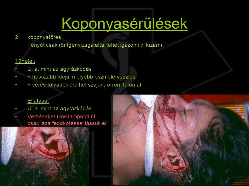 Koponyasérülések koponyatörés.