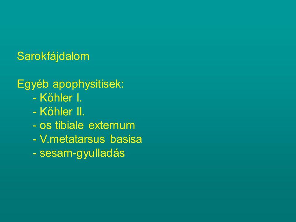 Sarokfájdalom Egyéb apophysitisek: - Köhler I. - Köhler II. - os tibiale externum. - V.metatarsus basisa.
