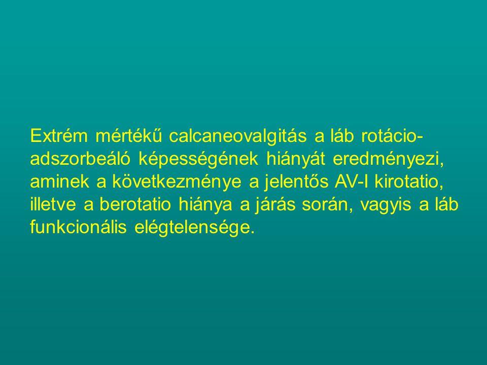 Extrém mértékű calcaneovalgitás a láb rotácio-adszorbeáló képességének hiányát eredményezi, aminek a következménye a jelentős AV-I kirotatio, illetve a berotatio hiánya a járás során, vagyis a láb funkcionális elégtelensége.
