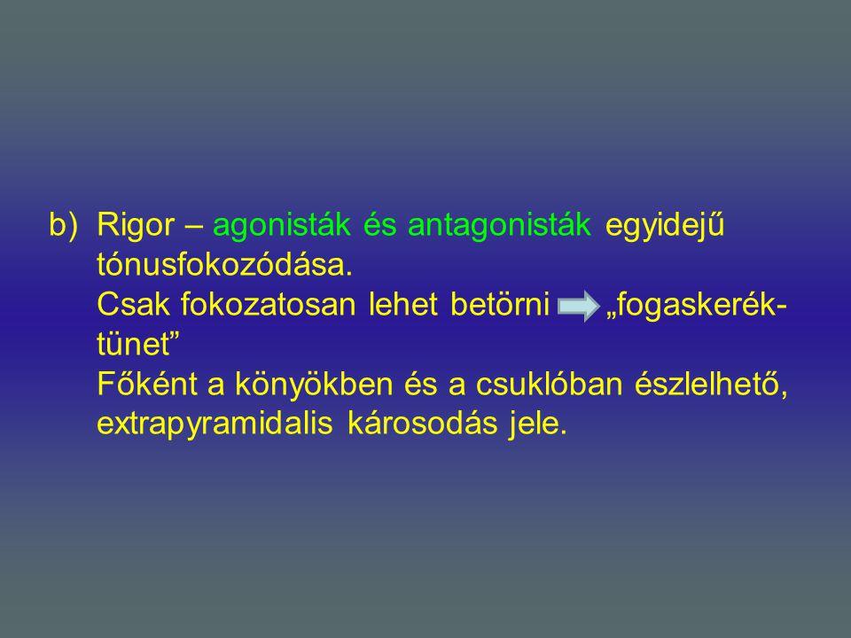 Rigor – agonisták és antagonisták egyidejű tónusfokozódása
