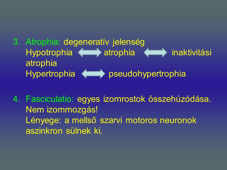 Atrophia: degeneratív jelenség Hypotrophia. atrophia