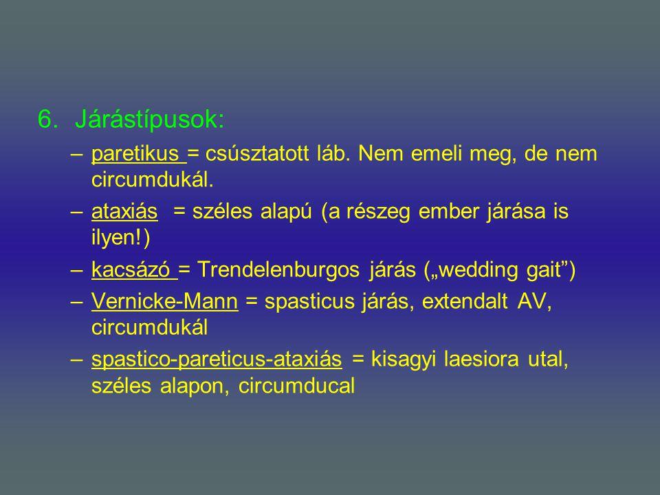Járástípusok: paretikus = csúsztatott láb. Nem emeli meg, de nem circumdukál. ataxiás = széles alapú (a részeg ember járása is ilyen!)
