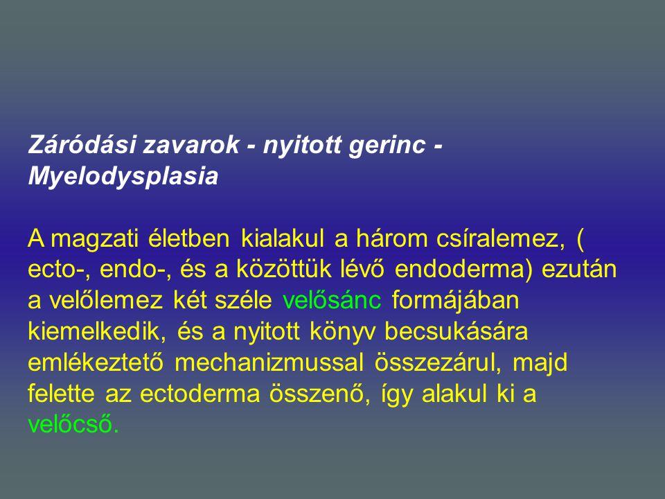 Záródási zavarok - nyitott gerinc - Myelodysplasia.