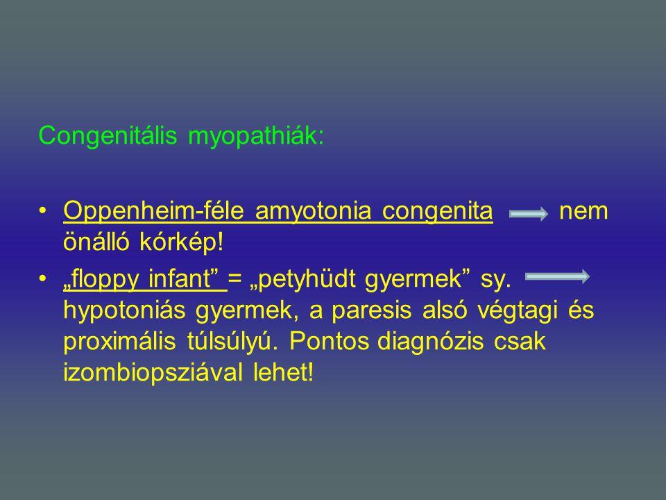 Congenitális myopathiák: