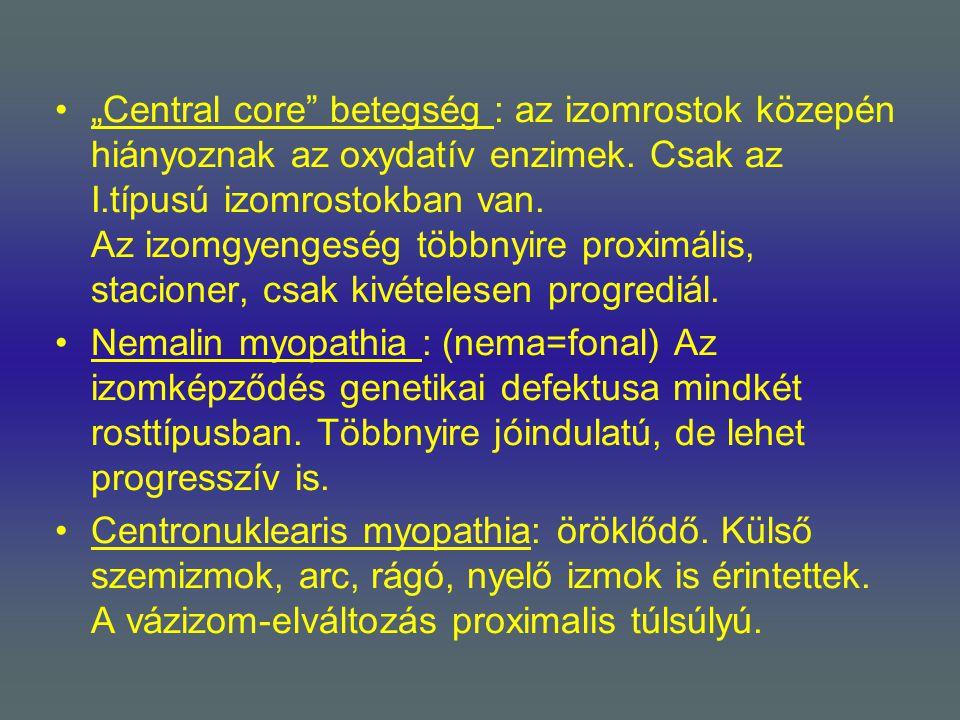 """""""Central core betegség : az izomrostok közepén hiányoznak az oxydatív enzimek. Csak az I.típusú izomrostokban van. Az izomgyengeség többnyire proximális, stacioner, csak kivételesen progrediál."""