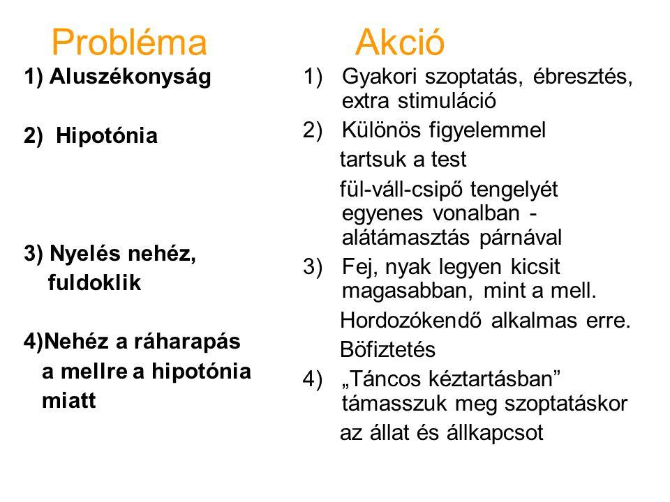 Probléma Akció 1) Aluszékonyság 2) Hipotónia 3) Nyelés nehéz,
