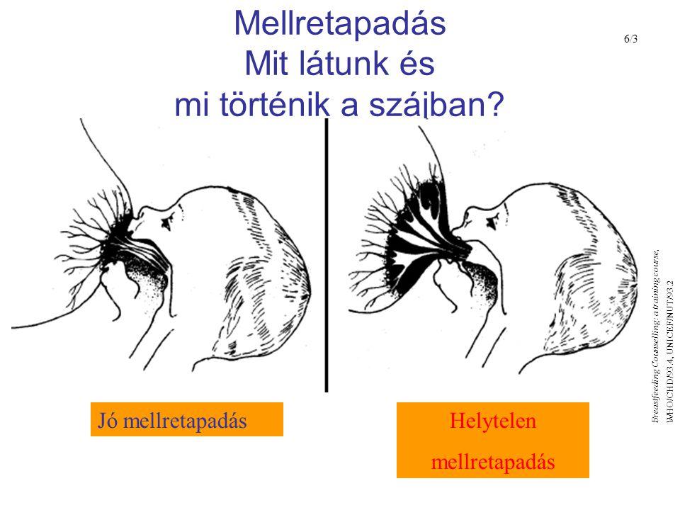 Mellretapadás Mit látunk és mi történik a szájban