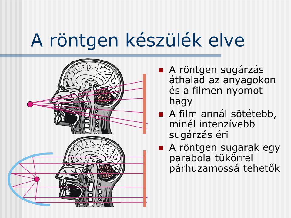 A röntgen készülék elve