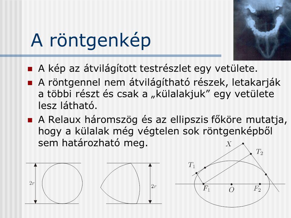 A röntgenkép A kép az átvilágított testrészlet egy vetülete.