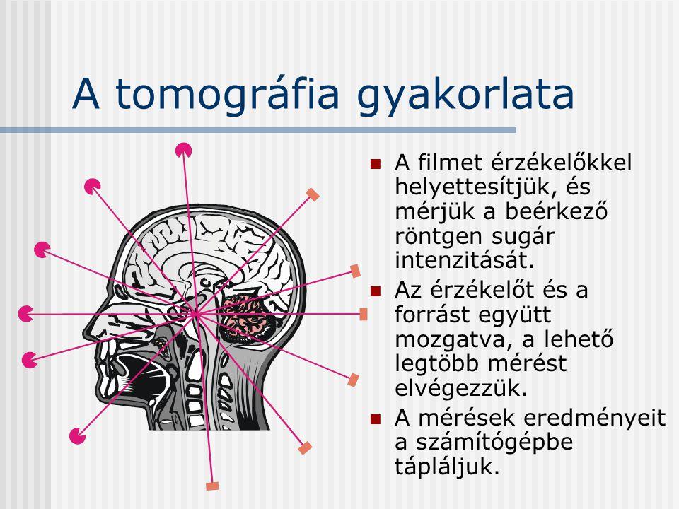 A tomográfia gyakorlata