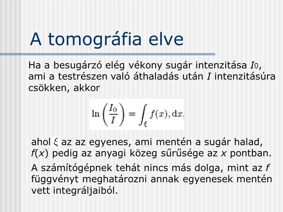 A tomográfia elve Ha a besugárzó elég vékony sugár intenzitása I0, ami a testrészen való áthaladás után I intenzitásúra csökken, akkor.