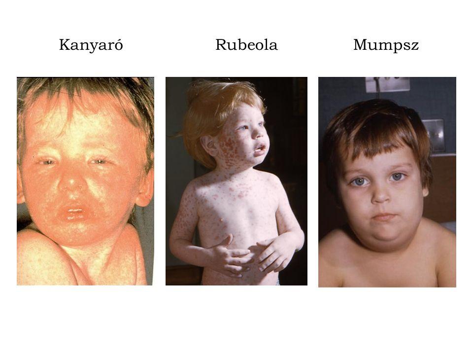 Kanyaró Rubeola Mumpsz