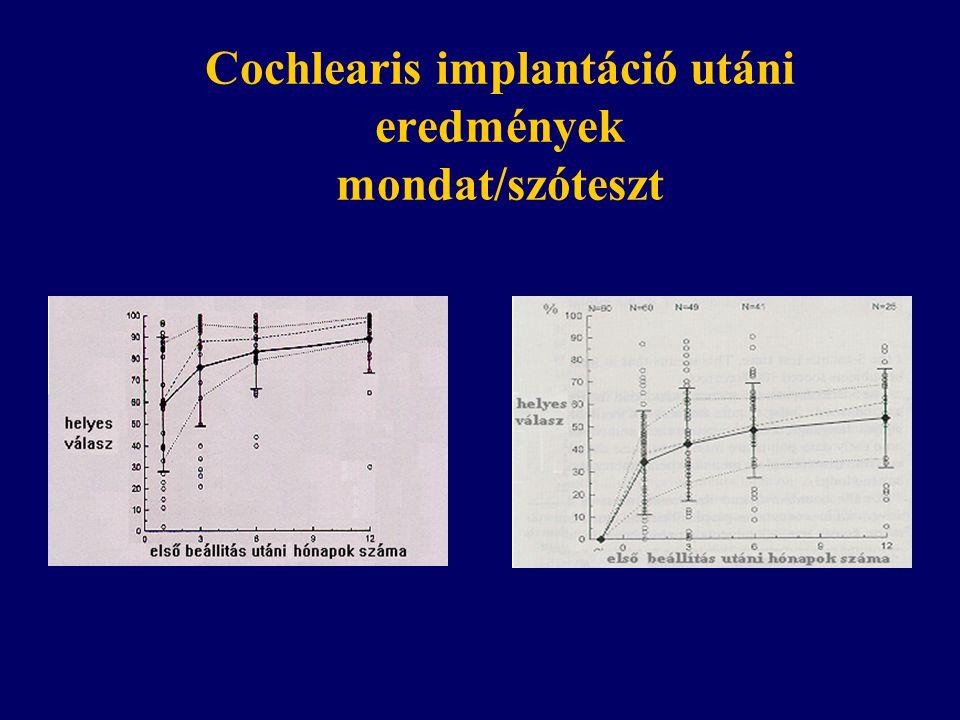 Cochlearis implantáció utáni eredmények mondat/szóteszt