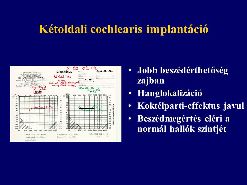 Kétoldali cochlearis implantáció