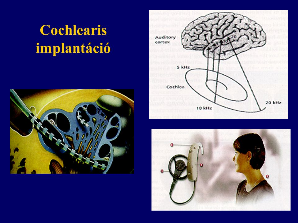 Cochlearis implantáció