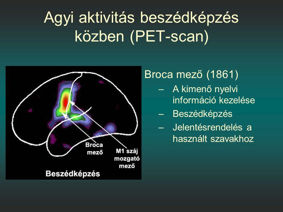 Agyi aktivitás beszédképzés közben (PET-scan)