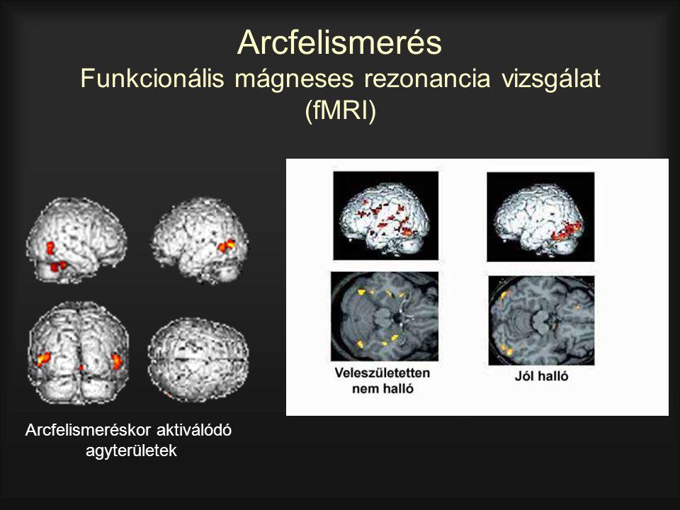 Arcfelismerés Funkcionális mágneses rezonancia vizsgálat (fMRI)