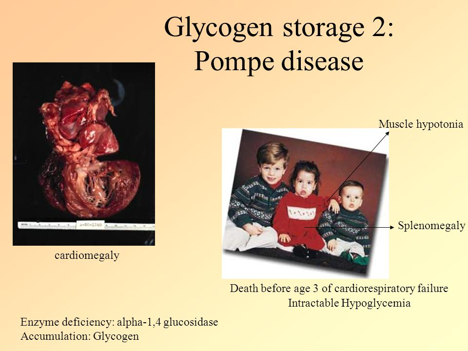 Glycogen storage 2: Pompe disease