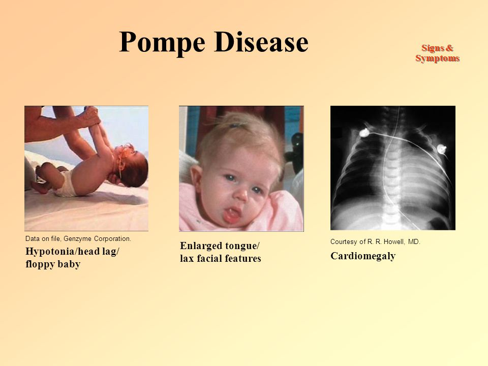 Pompe Disease Enlarged tongue/ lax facial features