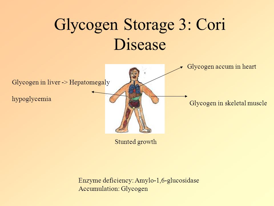 Glycogen Storage 3: Cori Disease