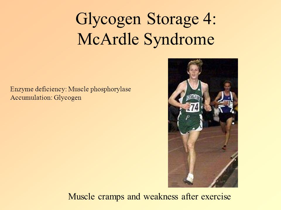 glycogen storage disease treatment guidelines