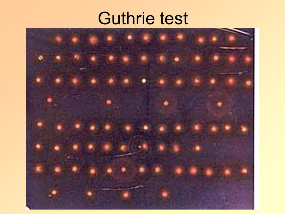 Guthrie test