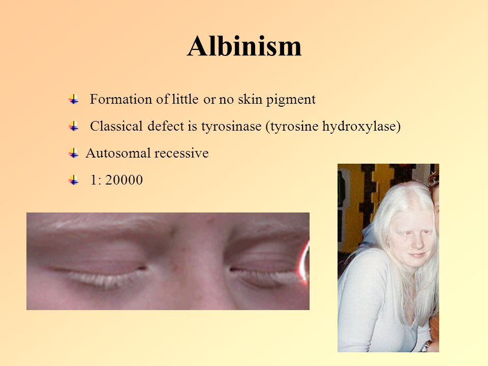 Albinism Formation of little or no skin pigment