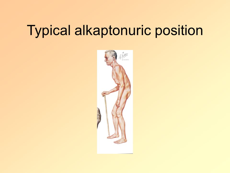 Typical alkaptonuric position